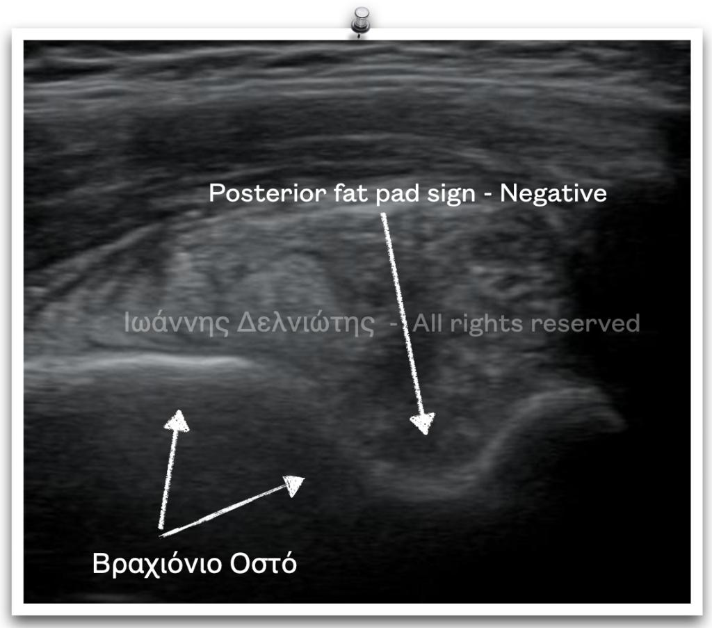 Διάγνωση παιδιατρικών καταγμάτων με υπέρηχο: Απουσία ενδραρθρικής συλλογής υγρού στον αγκώνα.