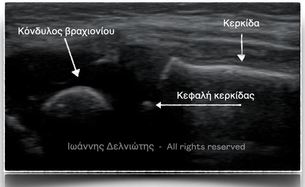 Διάγνωση παιδιατρικών καταγμάτων με υπέρηχο. Ανατομική ταυτοποίηση των οστών στην άρθρωση του αγκώνα